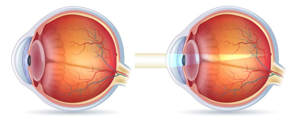 Aufbau und Funktion den des Auges