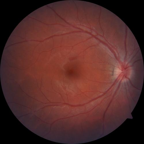 Augenhintergrund
