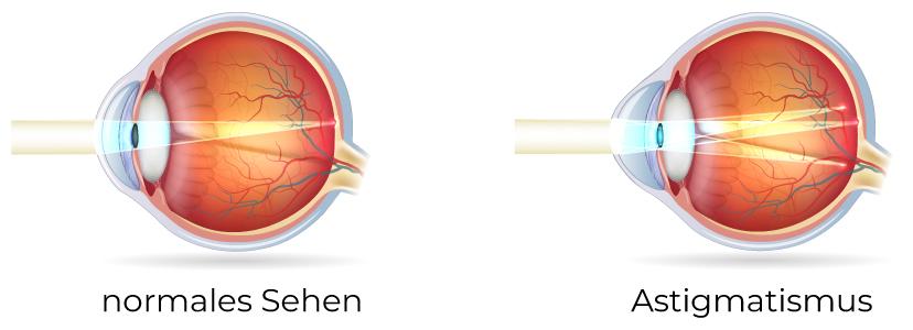 Hornhautverkrümmung des Auges